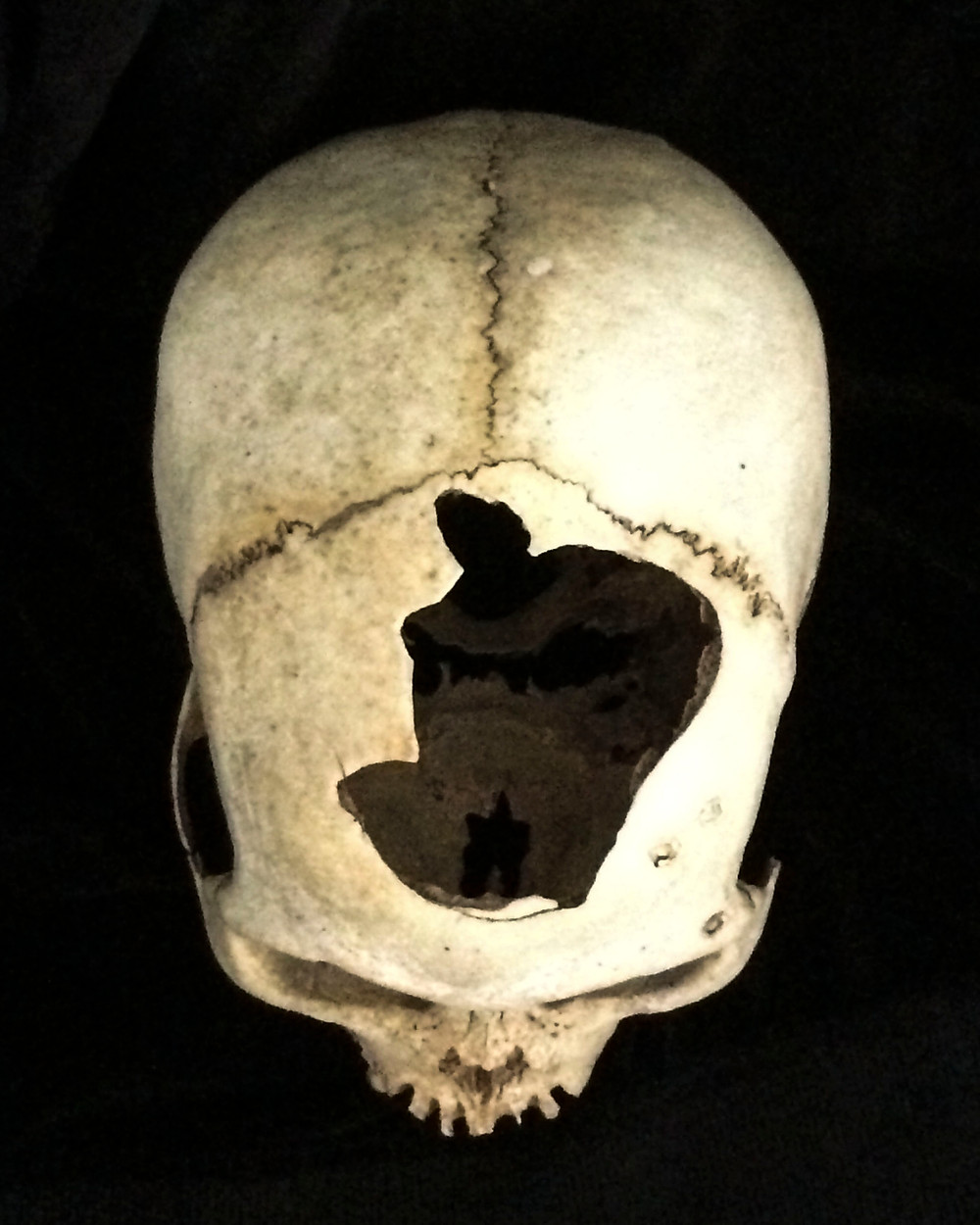 Skull from above