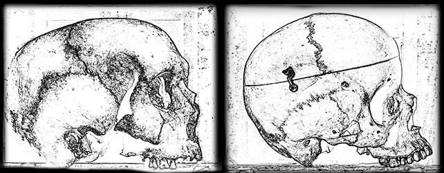 Skull shape - European males, medieval (left) and Victorian (right)