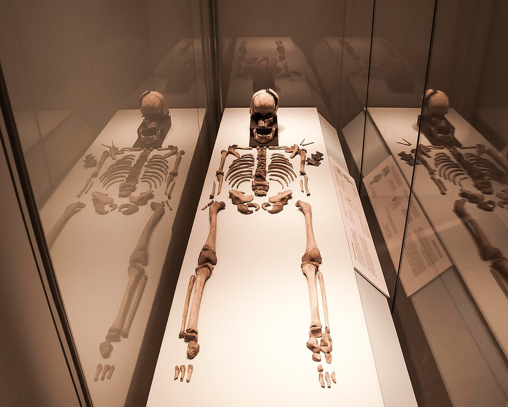 MAA display of teenage skeleton