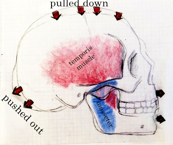 Deformation of skull when have strong chewing muscles