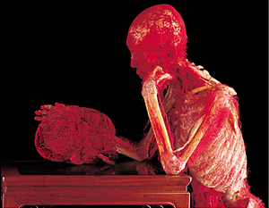 The Thinker - Gunther von Hagens