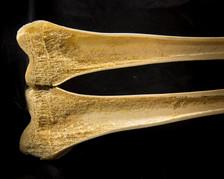Femur cross section