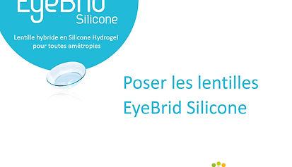 Pose d'une lentille hybride