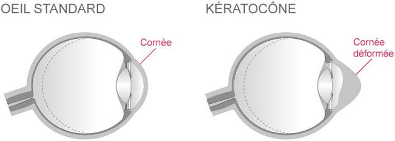 Comprendre le kératocone | Institut du Keratocone | Aix-en-Provence