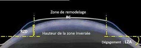 Comment ça marche? |Centre d'orthokeratologie | Aix en Provence