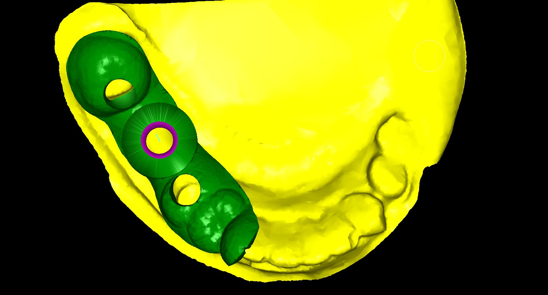 Implantátum 2