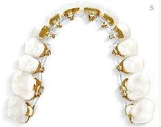 Zahnspange festsitzen, feste Spange, unsichtbar, Zahnspange für Jugendliche, Zahnspange für Erwachsene, Spange für Jugendliche, Spange für Erwachsene, Zahnspange Kosten, Erfahrungen Incognito