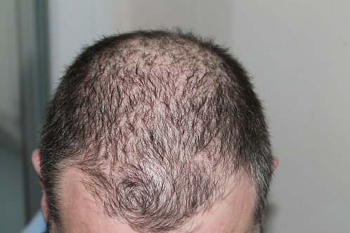 Hair Exercise to Regrow Loss of Hair