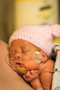 Babies who were born prematurely or with
