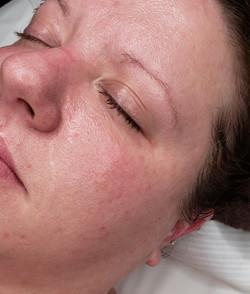 Advanced Facial Treatments