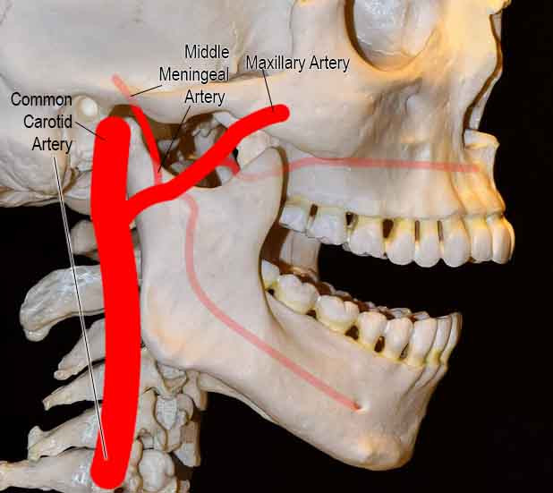 Middle Meningeal Artery branches off from the maxillary artery in the infratemporal fossa