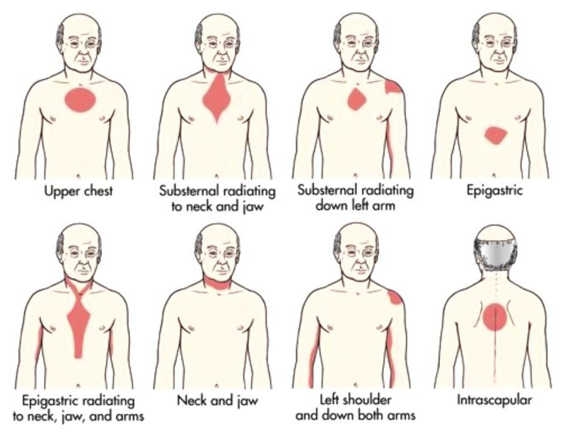 Different locations of Anginal Pain