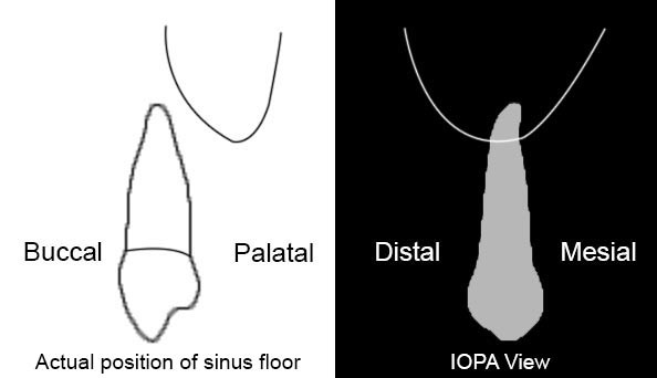 Bucco-palatally there is good amount of bone between premolar root and maxillary sinus floor but on IOPA it appears as if the root of the premolar is inside the maxillary sinus. This is because of the 2 dimensional nature of the IOPA.