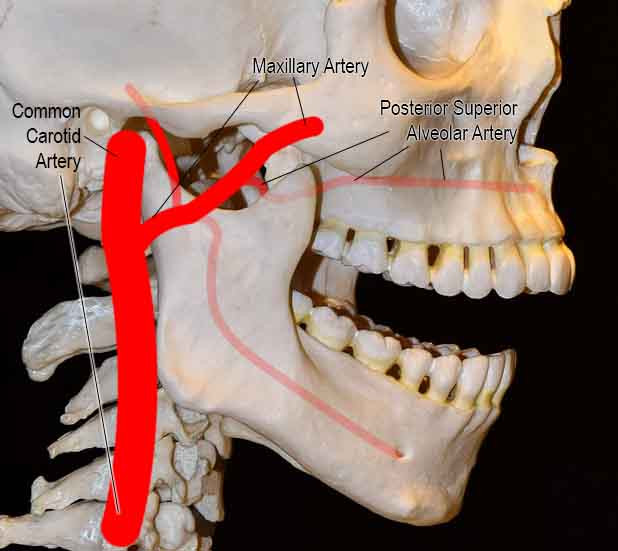 Posterior superior Alveolar artery branches off from the maxillary artery in the infratemporal fossa and descends on the posterior surface of the maxilla and gives branches that supply the molar and premolar teeth and the lining of the maxillary sinus