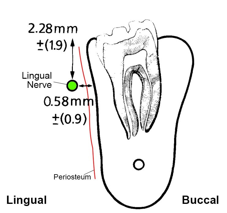 Lingual nerve is in close contact with the lingual plate of the mandibular third molar socket. Only a thin periosteum is present between them.