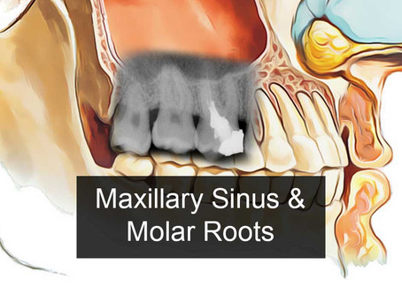 Maxillary Sinus & Molar Roots