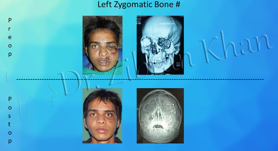 Zygomatic Bone #
