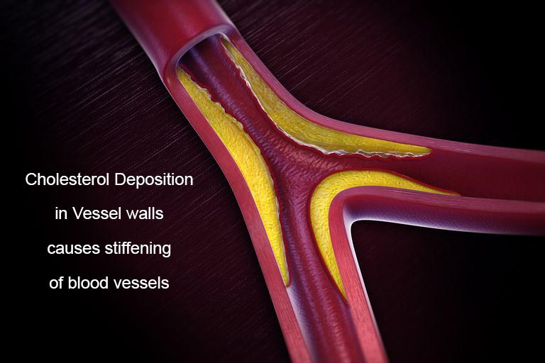 uncontrolled hyperglycemia will exhibit stiffening of blood vessels (atherosclerosis) because of increased cholesterol deposition in the vessel walls