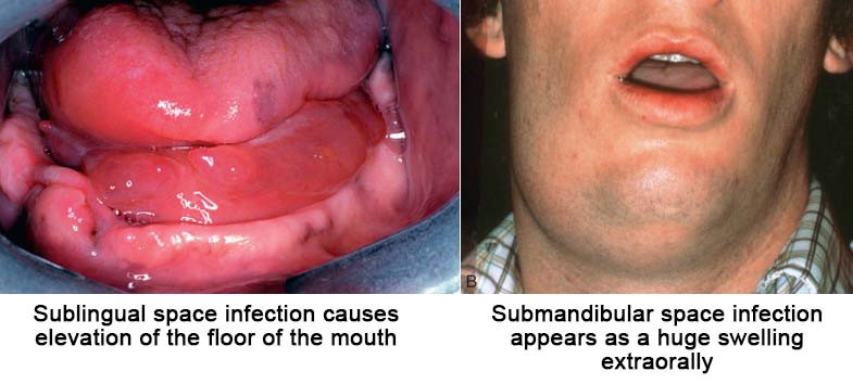 Clinical presentation of Sublingual & Submandibular space infection.