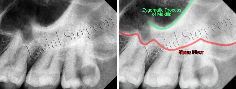Zygomatic process of maxilla may sometimes be mistaken as Maxillary sinus floor