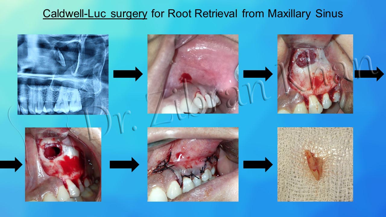 Caldwell-Luc surgery for Root Retrieval from Maxillary Sinus