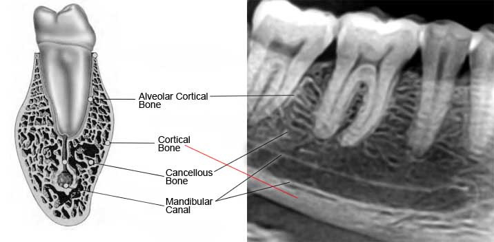 Outer layer of the bone is coritcal bone and the central zone is the cancellous bone. Cancellous bone is naturaly surrounded by cortical bone which appears as a white line on a radiograph.