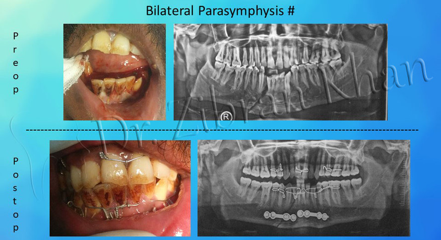 Bilateral Parasymphysis #