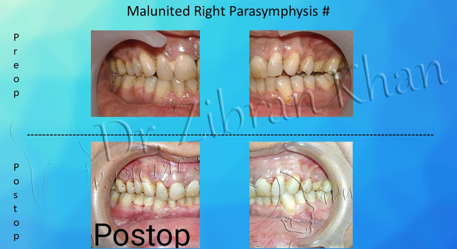 Malunited Right Parasymphysis #
