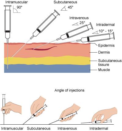 In Intradermal Injection the needle is kept at a 10-15 degree angle to the skin surface and the solution is deposited just under the epithelium.