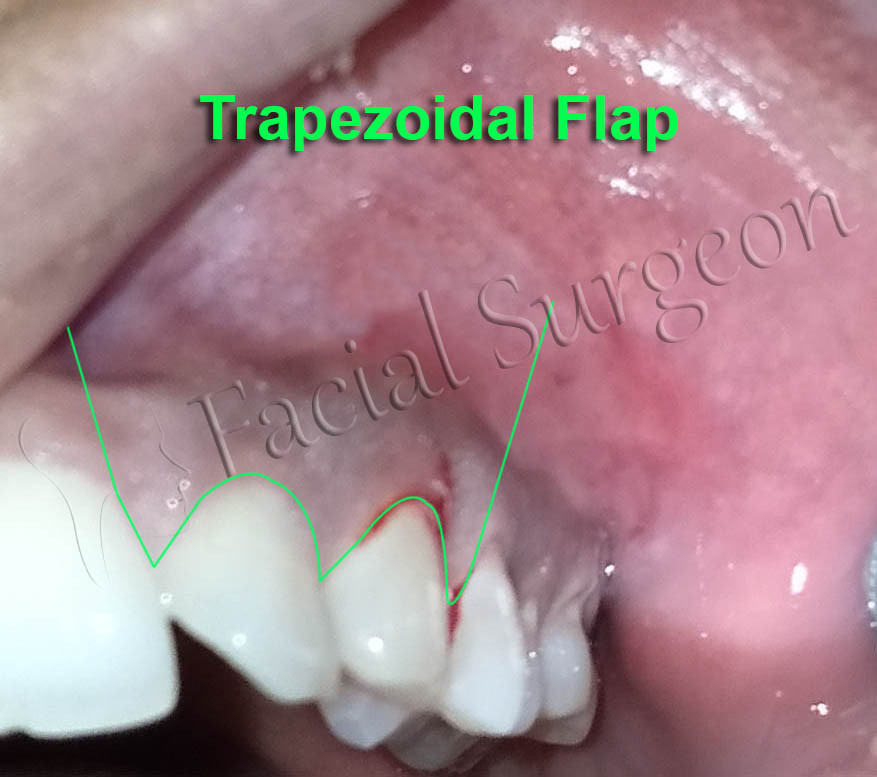 Planned incision for the Flap for Cladwell Luc Surgery