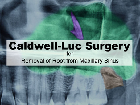 Caldwell-Luc Surgery