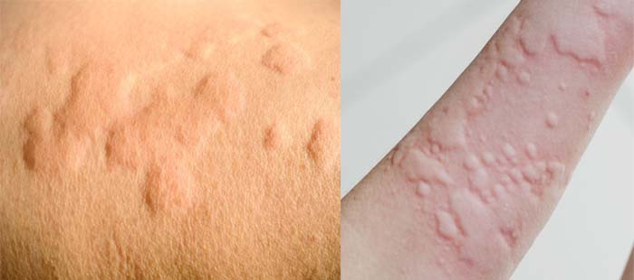 Hives are smooth elevated patches of skin seen in allergy.