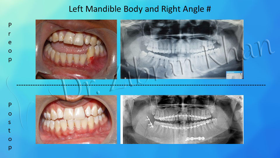 Left Mandible Body & Right Angle #