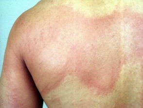 Erythema seen in allergy.