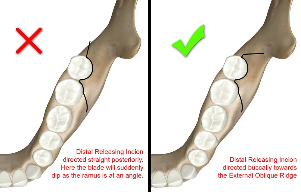 Distal releasing incision should be directed buccally towards External Oblique Ridge