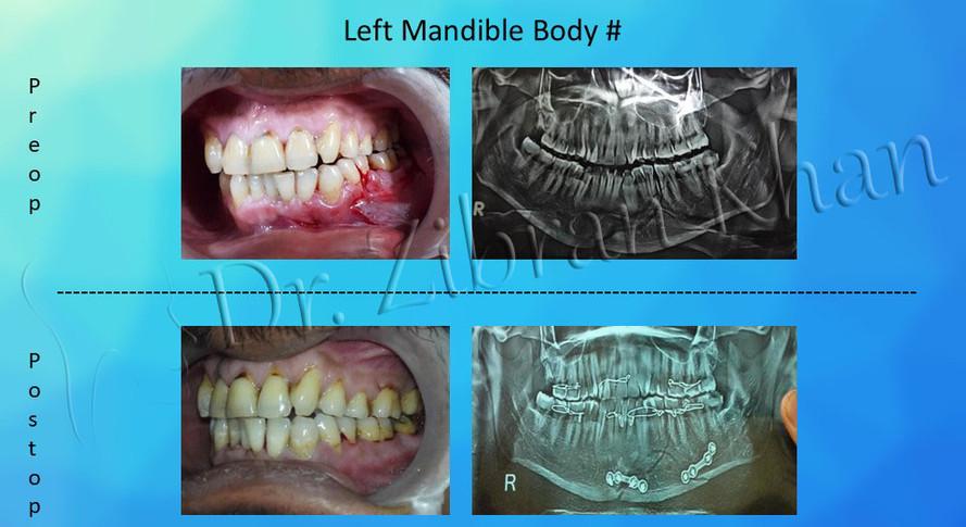 Left Mandible Body #