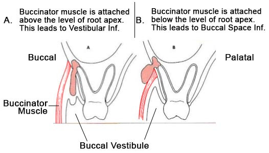 Depending on the site of attachment of buccinator, either buccal space or vestibule will be involved in the infection.