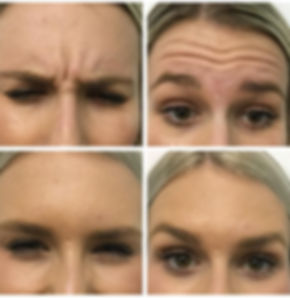 Anti-wrinkle treatment to Remove forehead lines and wrinkles and crowsfeet
