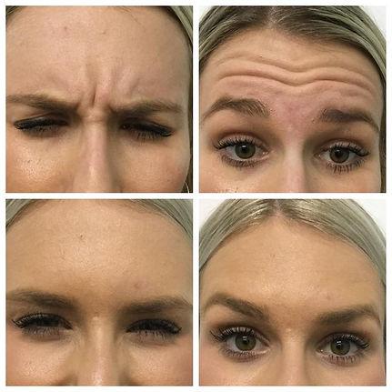 Anti wrinkle.jpg