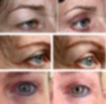 Jett Plasma Lift droopy eyelids blepharoplasty treatment results excessive eyelid skin