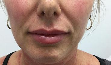 Fillers lips 2.jpg