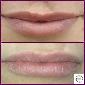 lip flip.jpg