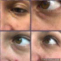 Jett Plasma Xanthelasmas treatment removal cholesterol spots