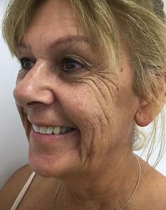 Anti wrinkle treatment remove crowsfeet