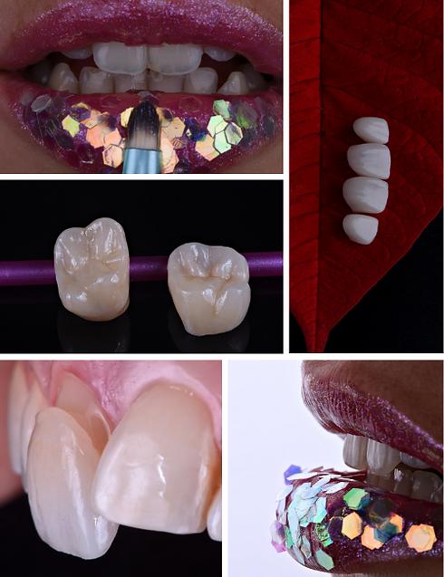 Fotografia-medicina-dentaria-3.png
