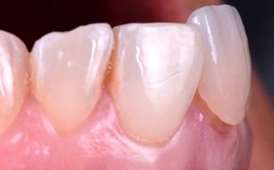 Fotografia Medicina Dentária Facetas