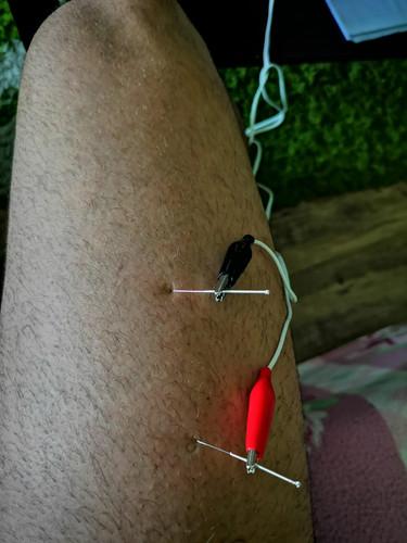 Electroacupunctură