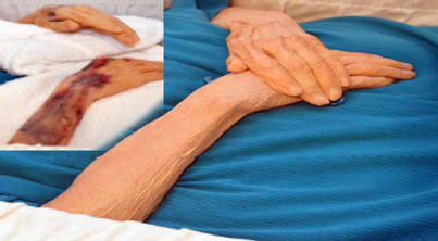 Before and After arm bruising solved with PMRC Cosmetics