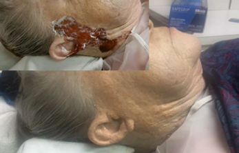 Before and After PMRC Post Mortem Resonstructive Cosmetics