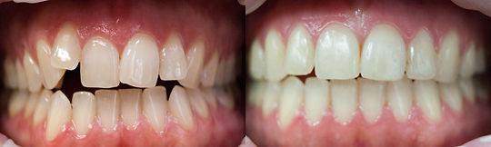 braces at Jonathan K. Davis, DDS, dentist in Findlay, OH
